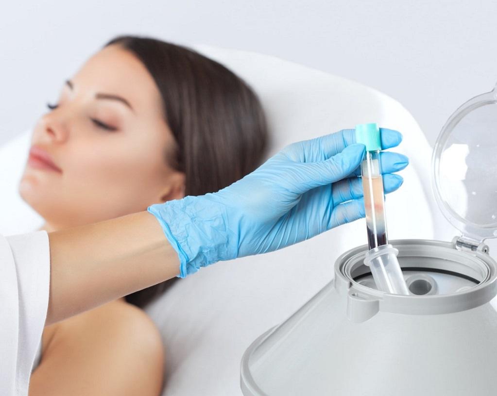 Аутоплазмотерапия